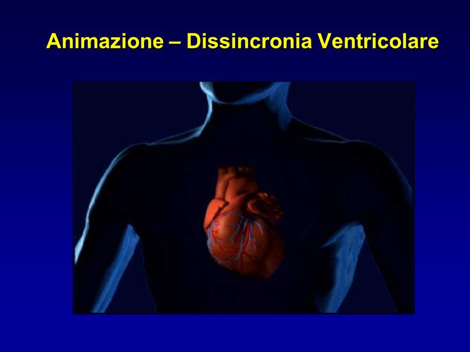 Cardiac Resynchronization Migliora il pattern di attivazione Ottimizza lintervallo atrio-ventricolare