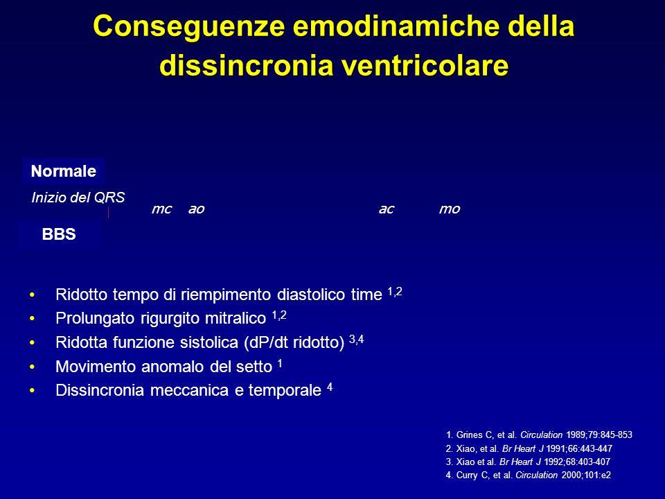 Conseguenze emodinamiche della dissincronia ventricolare Inizio del QRS mcaoacmo Ridotto tempo di riempimento diastolico time 1,2 Prolungato rigurgito