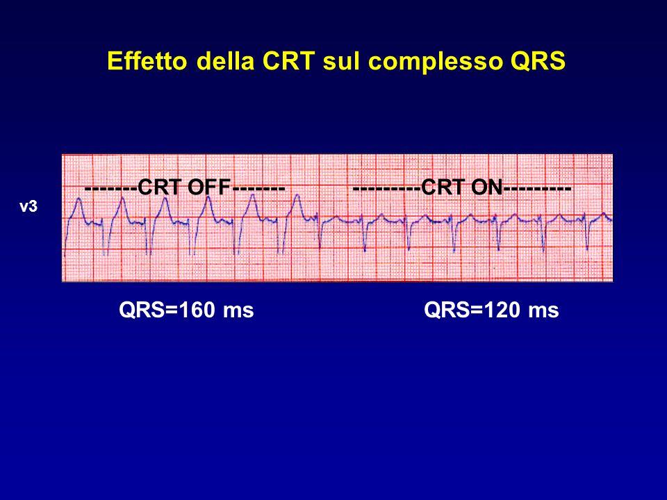 La CRT migliora la qualità di vita e la classe funzionale NYHA QoLNYHA PATH-CHF 1 (n=41) + + InSync (Europe) 2 (n=103) + + InSync ICD (Europe) 3 (n=84) + + MUSTIC 4 (n=67) + MIRACLE 5 (n=453) + + MIRACLE ICD 6 (n=364) + + Auricchio A.