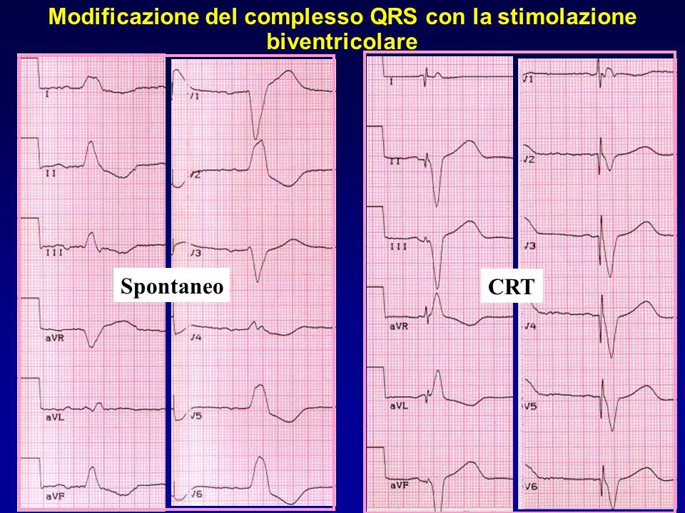 Spontaneo CRT Modificazione del complesso QRS con la stimolazione biventricolare
