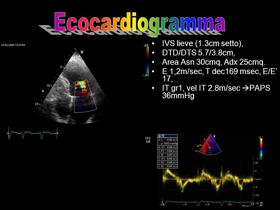 IVS lieve (1.3cm setto), DTD/DTS 5.7/3.8cm, Area Asn 30cmq, Adx 25cmq. E 1,2m/sec, T dec169 msec, E/E 17, IT gr1, vel IT 2.8m/sec PAPS 36mmHg