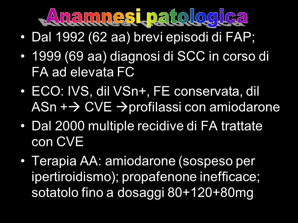Dal 1992 (62 aa) brevi episodi di FAP; 1999 (69 aa) diagnosi di SCC in corso di FA ad elevata FC ECO: IVS, dil VSn+, FE conservata, dil ASn + CVE prof