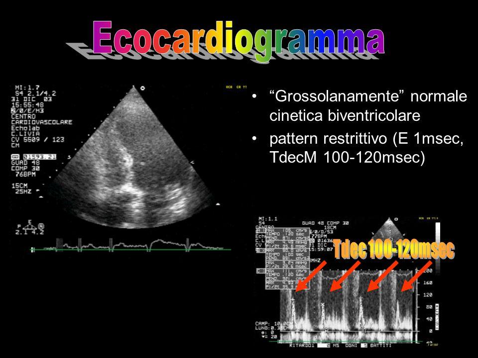 Grossolanamente normale cinetica biventricolare pattern restrittivo (E 1msec, TdecM 100-120msec)