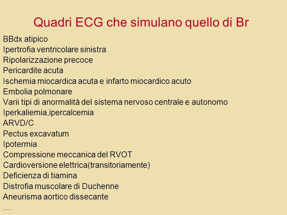 Quadri ECG che simulano quello di Br BBdx atipico Ipertrofia ventricolare sinistra Ripolarizzazione precoce Pericardite acuta Ischemia miocardica acut