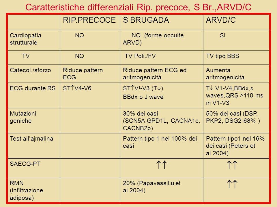 Caratteristiche differenziali Rip. precoce, S Br.,ARVD/C RIP.PRECOCES BRUGADAARVD/C Cardiopatia strutturale NO NO (forme occulte ARVD) SI TV NO TV Pol