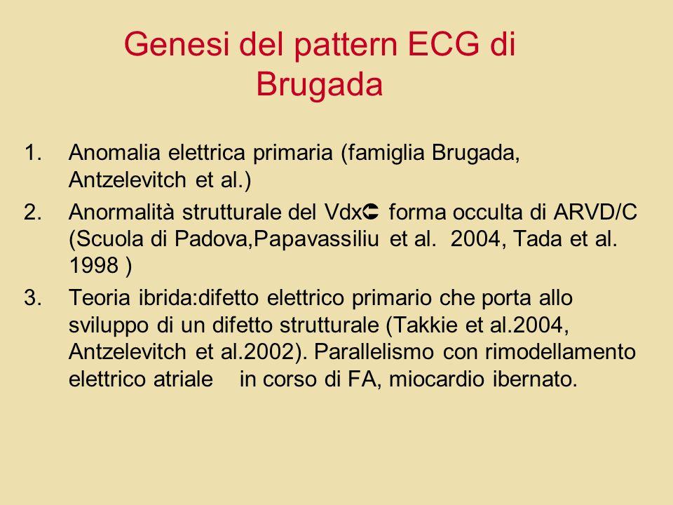 Genesi del pattern ECG di Brugada 1.Anomalia elettrica primaria (famiglia Brugada, Antzelevitch et al.) 2.Anormalità strutturale del Vdx forma occulta