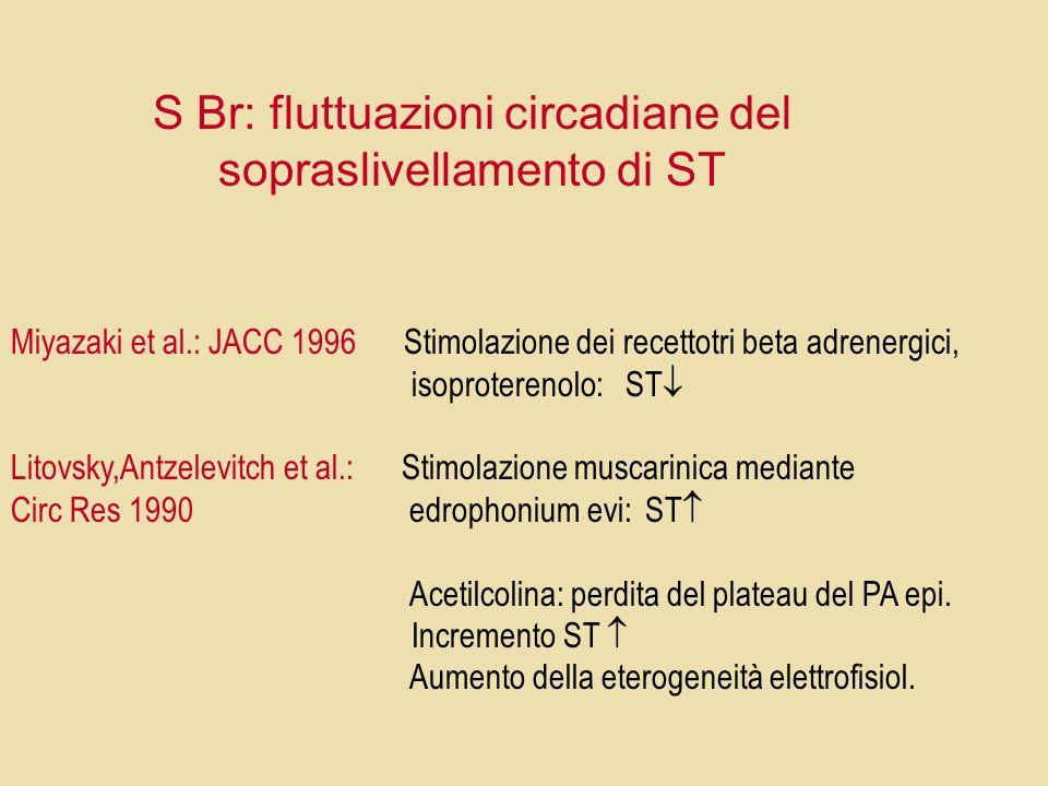 S Br: fluttuazioni circadiane del sopraslivellamento di ST Miyazaki et al.: JACC 1996 Stimolazione dei recettotri beta adrenergici, isoproterenolo: ST