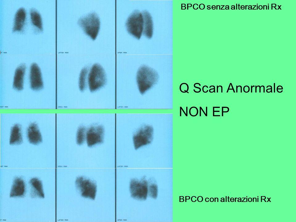 BPCO senza alterazioni Rx BPCO con alterazioni Rx Q Scan Anormale NON EP