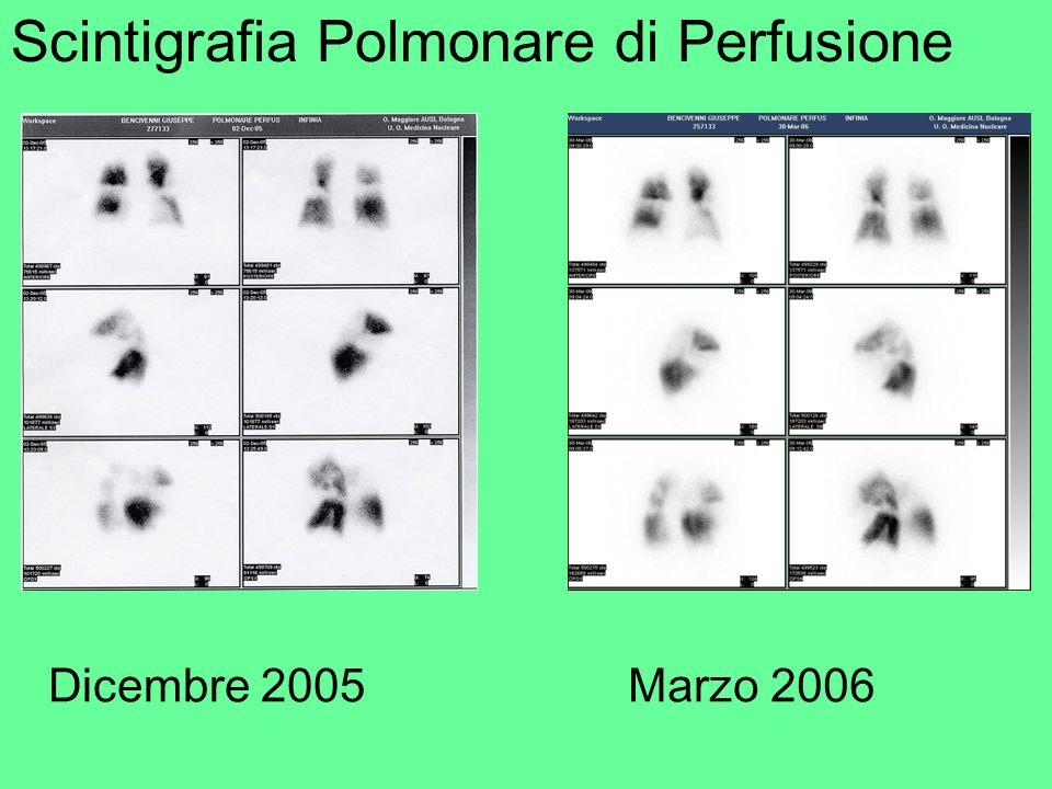 Scintigrafia Polmonare di Perfusione Dicembre 2005Marzo 2006