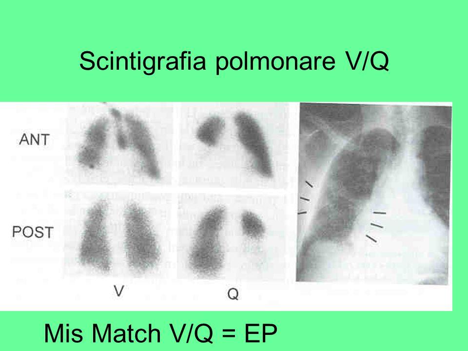 PIOPED Value of the ventilation/perfusion scan in acute pulmonary embolism diagnosis JAMA 1990 ; 263: 2753-2759 Studio multicentrico prospettico (1985-1986) Clin.