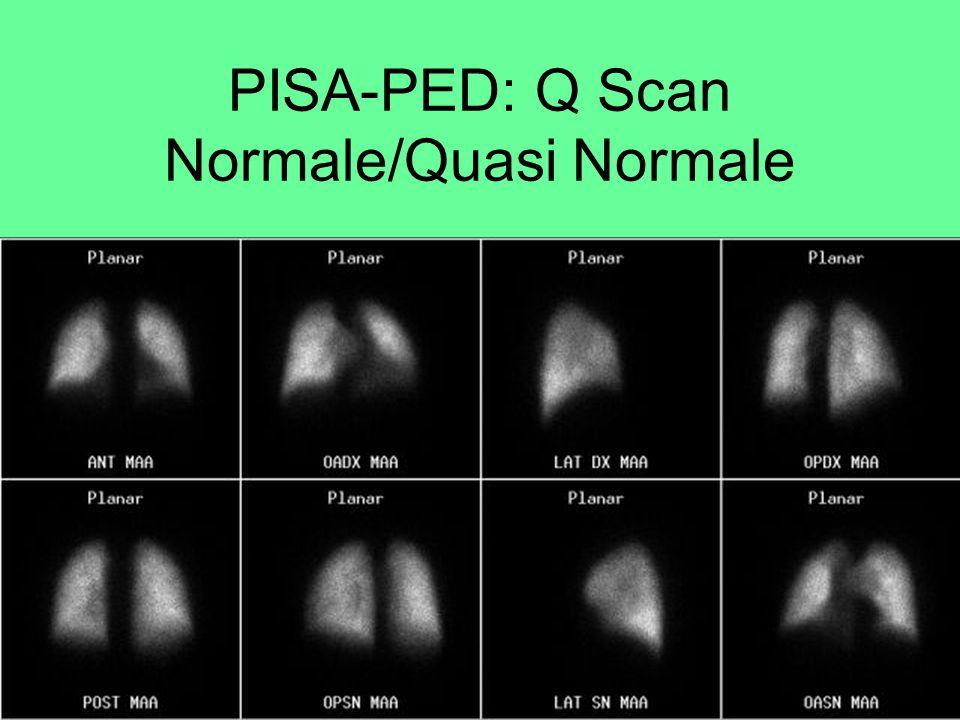 Q Scan: valore intangibile Sicura ed eseguibile in tutti i pazienti Altissimo valore predittivo negativo (Q Scan NL = EP <1%) Dose bassa 1-2 mSv Costo accettabile D.M.123.00 Euro