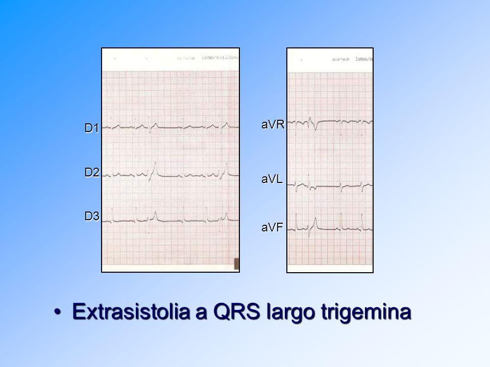 Extrasistolia a QRS largo trigeminaExtrasistolia a QRS largo trigemina D1D2D3 aVRaVLaVF