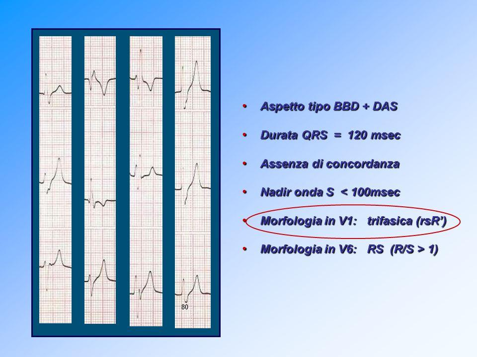 Criteri morfologici + Presenza di modificazioni dellonda T precedente (compatibili con onda P nascosta) = Origine sopraventricolare (conduzione aberrante) Pausa postextrasistolica compensatoria Pausa postextrasistolica compensatoria 760470 1040 V1V2V3 V4V5V6