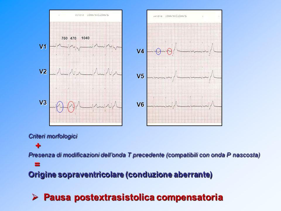 Criteri morfologici + Presenza di modificazioni dellonda T precedente (compatibili con onda P nascosta) = Origine sopraventricolare (conduzione aberra