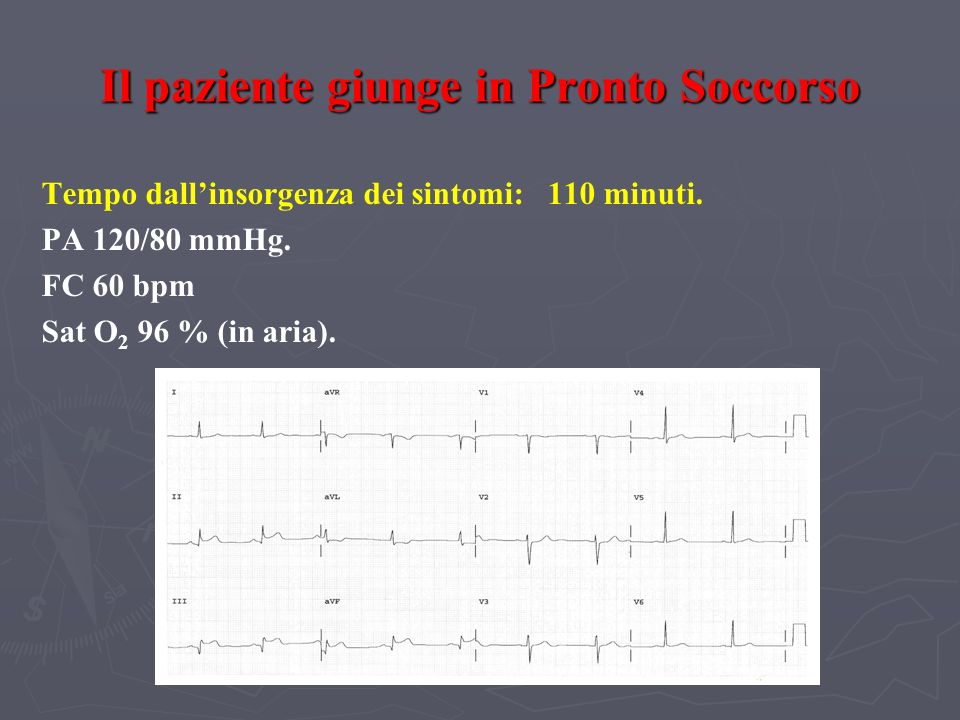 Il paziente giunge in Pronto Soccorso Tempo dallinsorgenza dei sintomi: 110 minuti. PA 120/80 mmHg. FC 60 bpm Sat O 2 96 % (in aria).