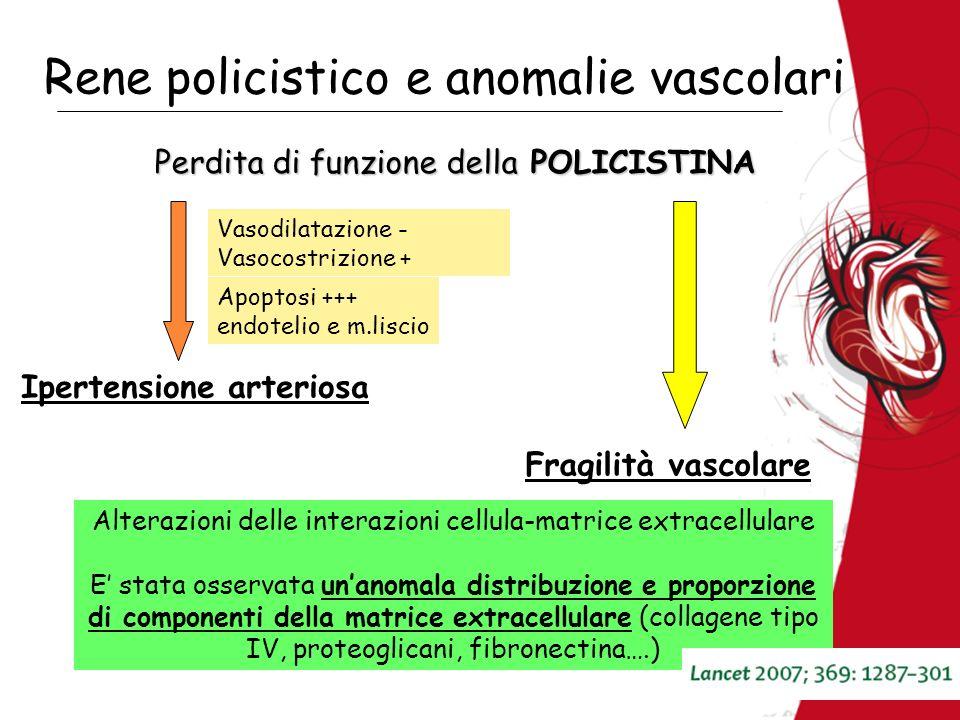 Rene policistico e anomalie vascolari Perdita di funzione della POLICISTINA Apoptosi +++ endotelio e m.liscio Vasodilatazione - Vasocostrizione + Alte