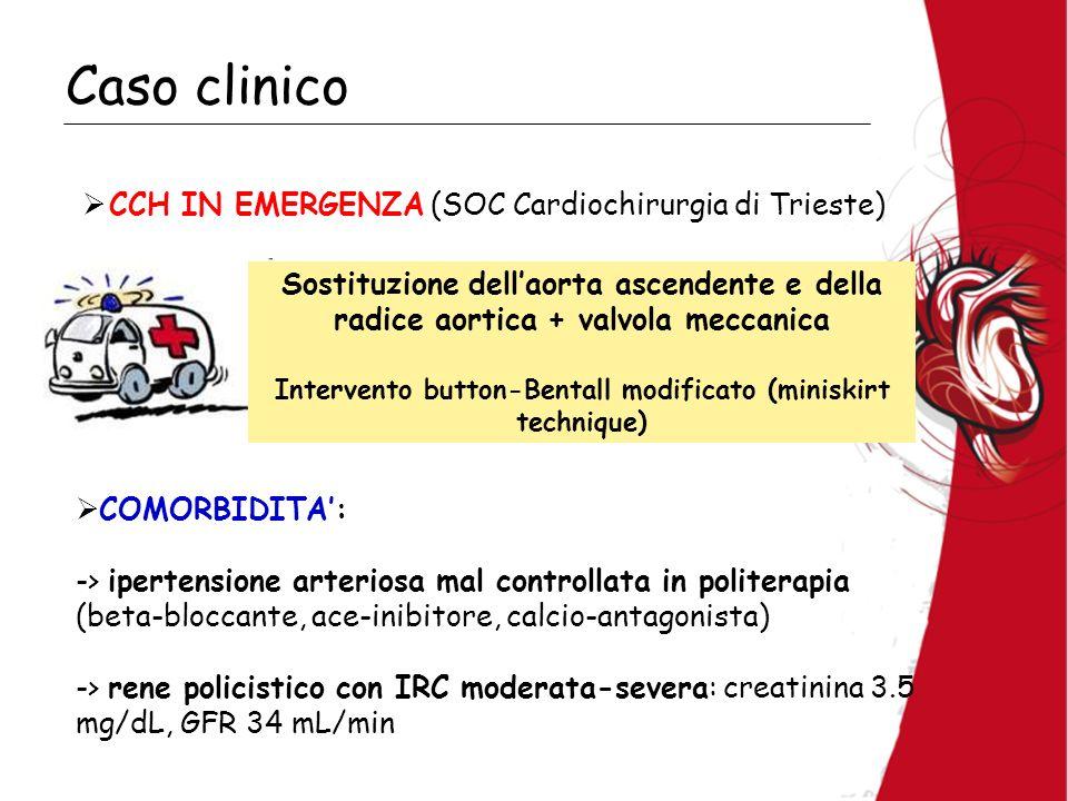 Caso clinico COMORBIDITA: -> ipertensione arteriosa mal controllata in politerapia (beta-bloccante, ace-inibitore, calcio-antagonista) -> rene policistico con IRC moderata-severa: creatinina 3.5 mg/dL, GFR 34 mL/min CCH IN EMERGENZA (SOC Cardiochirurgia di Trieste) Sostituzione dellaorta ascendente e della radice aortica + valvola meccanica Intervento button-Bentall modificato (miniskirt technique)