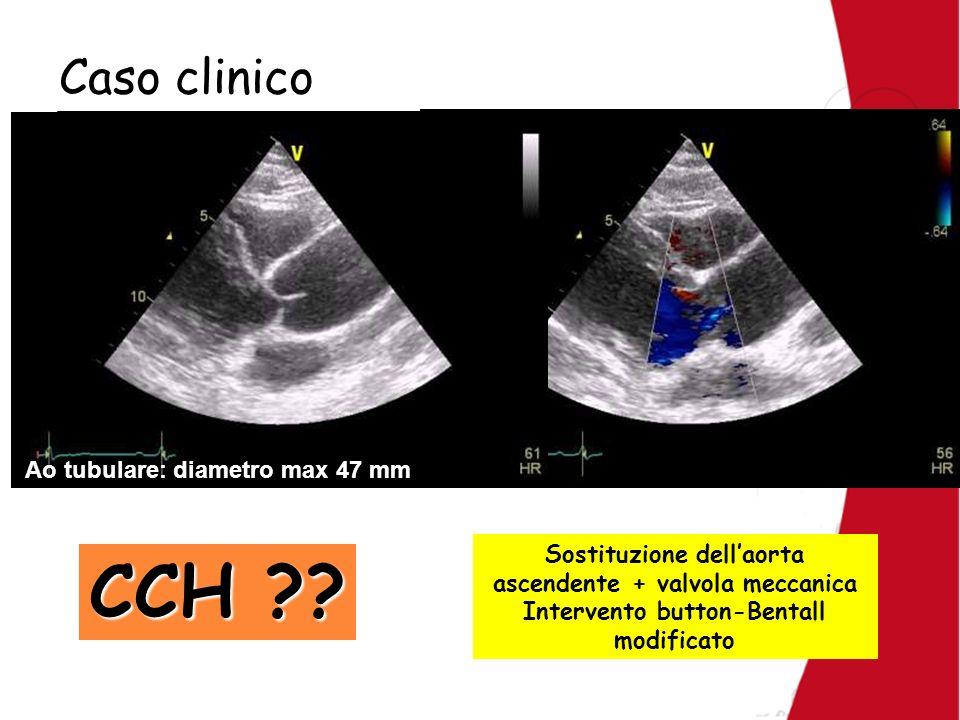 Caso clinico Ao tubulare: diametro max 47 mm Sostituzione dellaorta ascendente + valvola meccanica Intervento button-Bentall modificato CCH ??