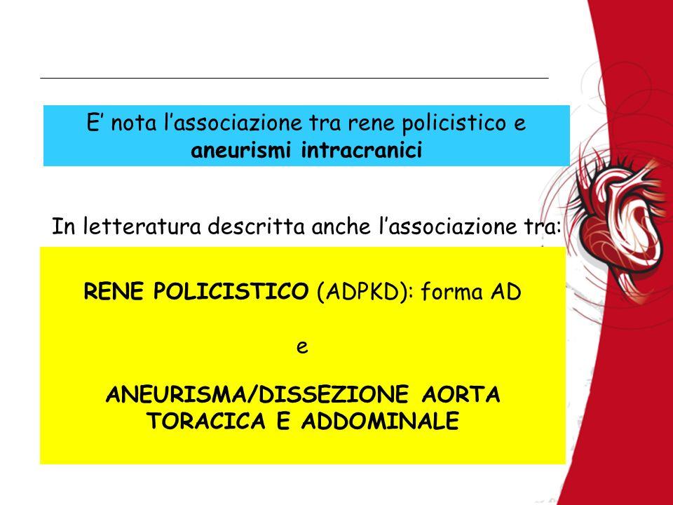 RENE POLICISTICO (ADPKD): forma AD e ANEURISMA/DISSEZIONE AORTA TORACICA E ADDOMINALE In letteratura descritta anche lassociazione tra: E nota lassoci