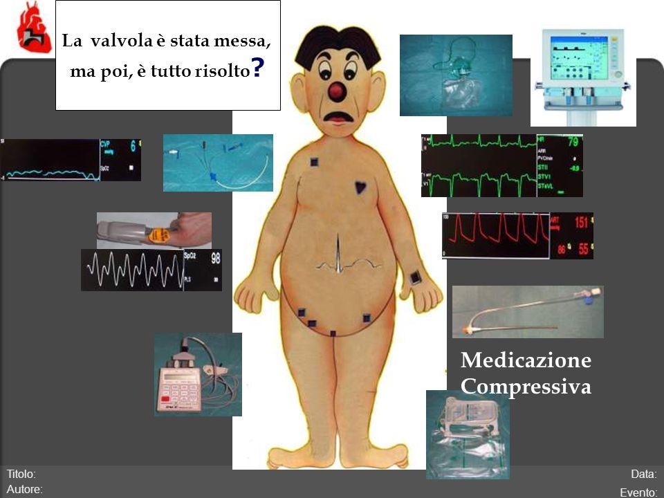 Data: Evento: Titolo: Autore: Medicazione Compressiva La valvola è stata messa, ma poi, è tutto risolto