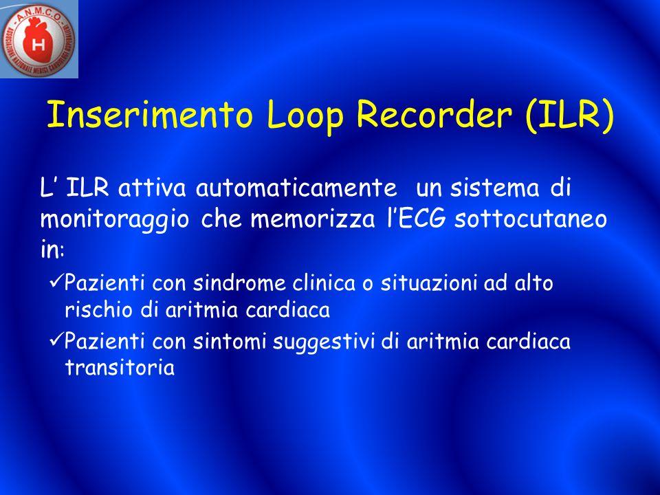 Inserimento Loop Recorder (ILR) L ILR attiva automaticamente un sistema di monitoraggio che memorizza lECG sottocutaneo in : Pazienti con sindrome cli