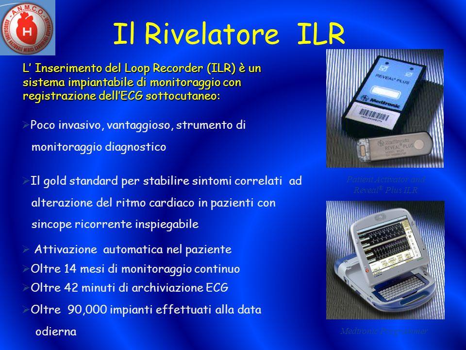 Il Rivelatore ILR L Inserimento del Loop Recorder (ILR) è un sistema impiantabile di monitoraggio con registrazione dellECG sottocutaneo: Patient Acti
