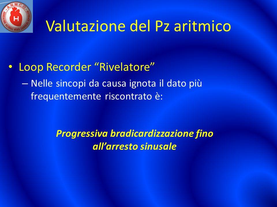Valutazione del Pz aritmico Loop Recorder Rivelatore – Nelle sincopi da causa ignota il dato più frequentemente riscontrato è: Progressiva bradicardiz