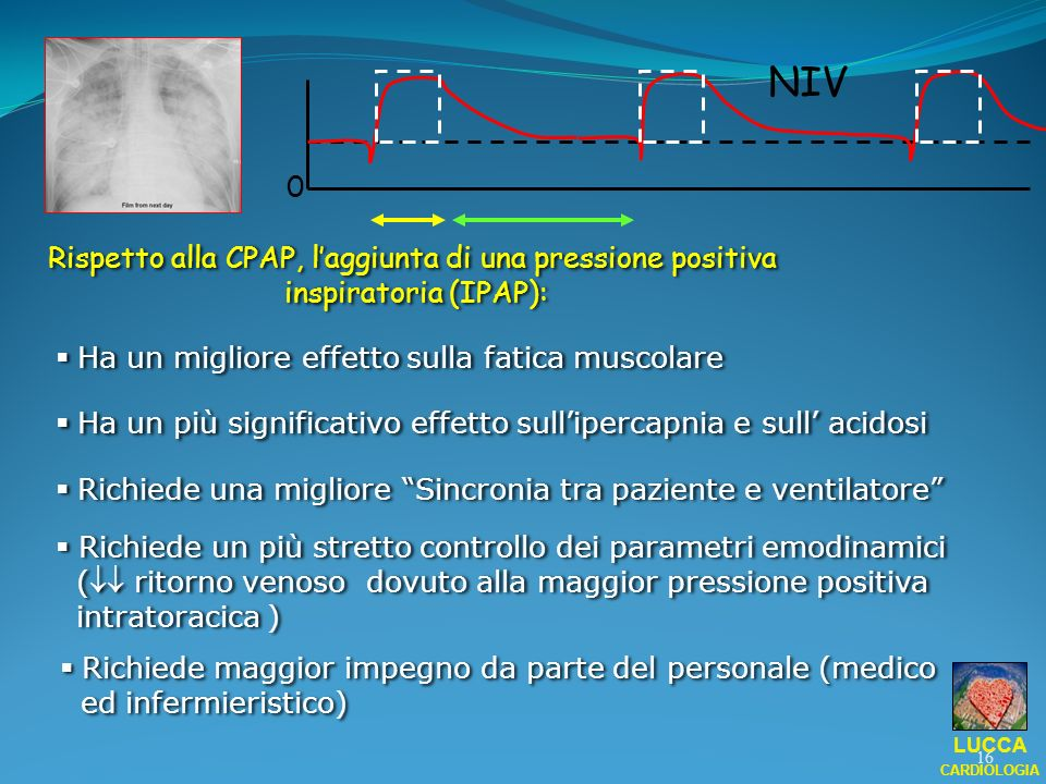 0 NIV Rispetto alla CPAP, laggiunta di una pressione positiva inspiratoria (IPAP): Rispetto alla CPAP, laggiunta di una pressione positiva inspiratori