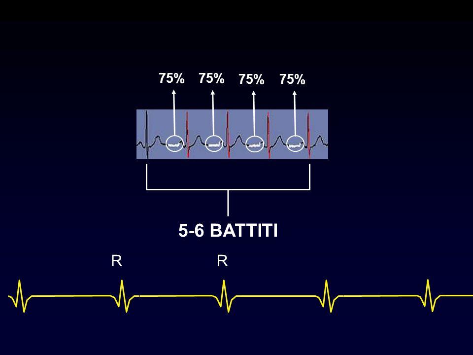 5-6 BATTITI 75% RR