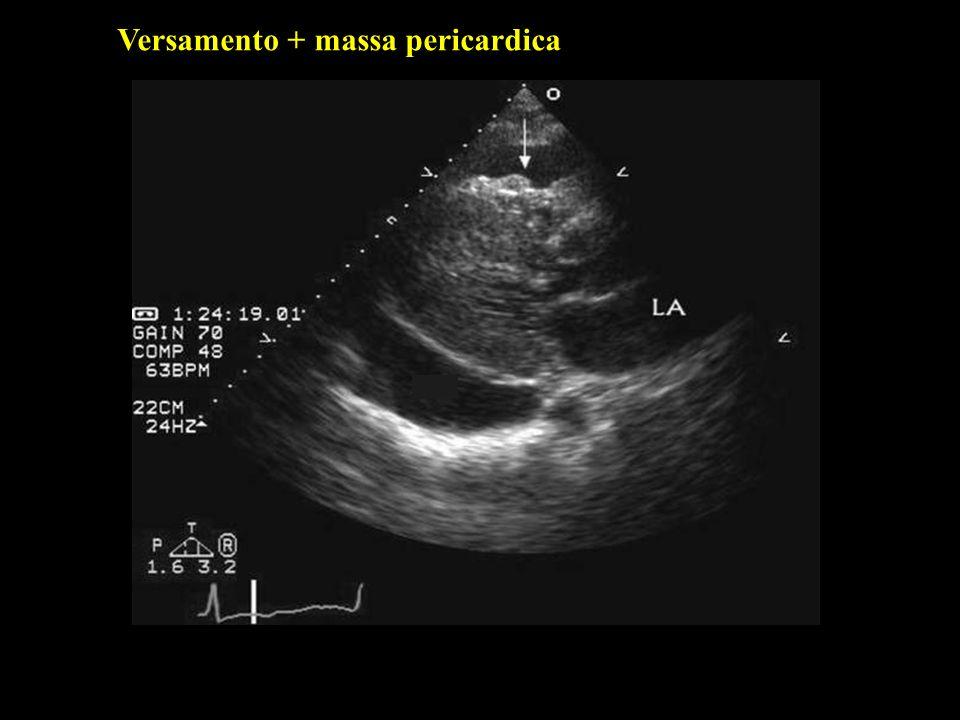 Valutazione semiquantitativa Versamento pericardico lieve : spazio ecoprivo sistodiastolico anteriore e posteriore < 1cm