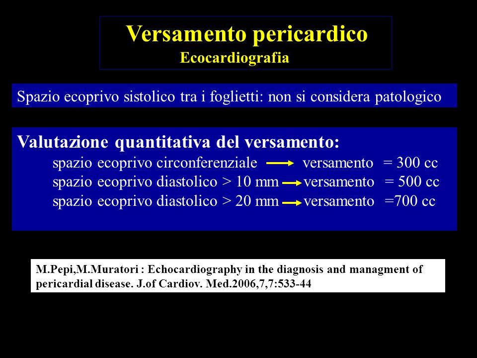 Valutazione quantitativa del versamento: spazio ecoprivo diastolico > 10 mm versamento > 500 cc