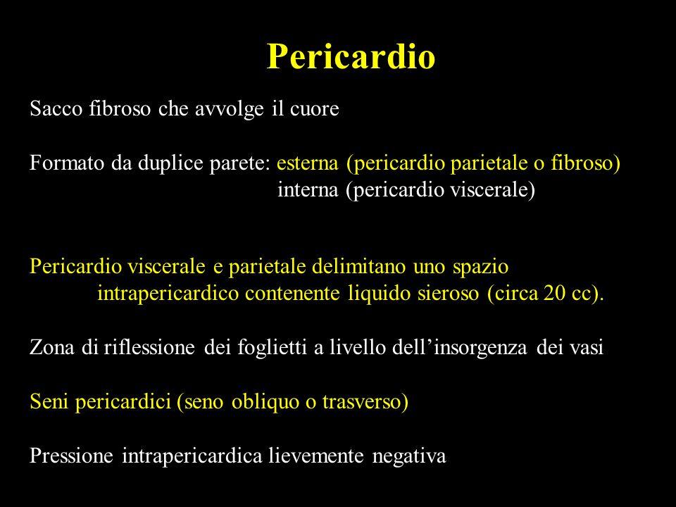 Versamento pericardico Raccolta di liquido allinterno del sacco pericardico Cause: pericardite acuta (virale, idiopatica) pericardite neoplastica pericardite attinica pericardite post-traumatica collagenopatie postpericardiotomica s.