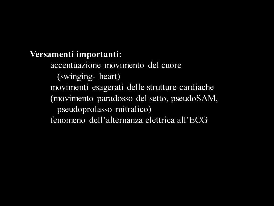 Versamenti importanti: accentuazione movimento del cuore (swinging- heart) movimenti esagerati delle strutture cardiache (movimento paradosso del sett