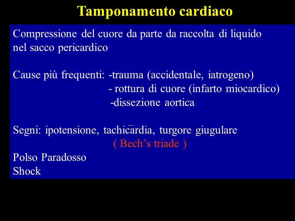 Emodinamica : La presenza di liquido,gas, materiale trombotico nel pericardio Aumento P intrapericardica > P atriale dx (4-5 mmHg ) Ostacolo ritorno venoso e riempimento diastolico: Ridotta portata e polso paradosso (riduzione P.