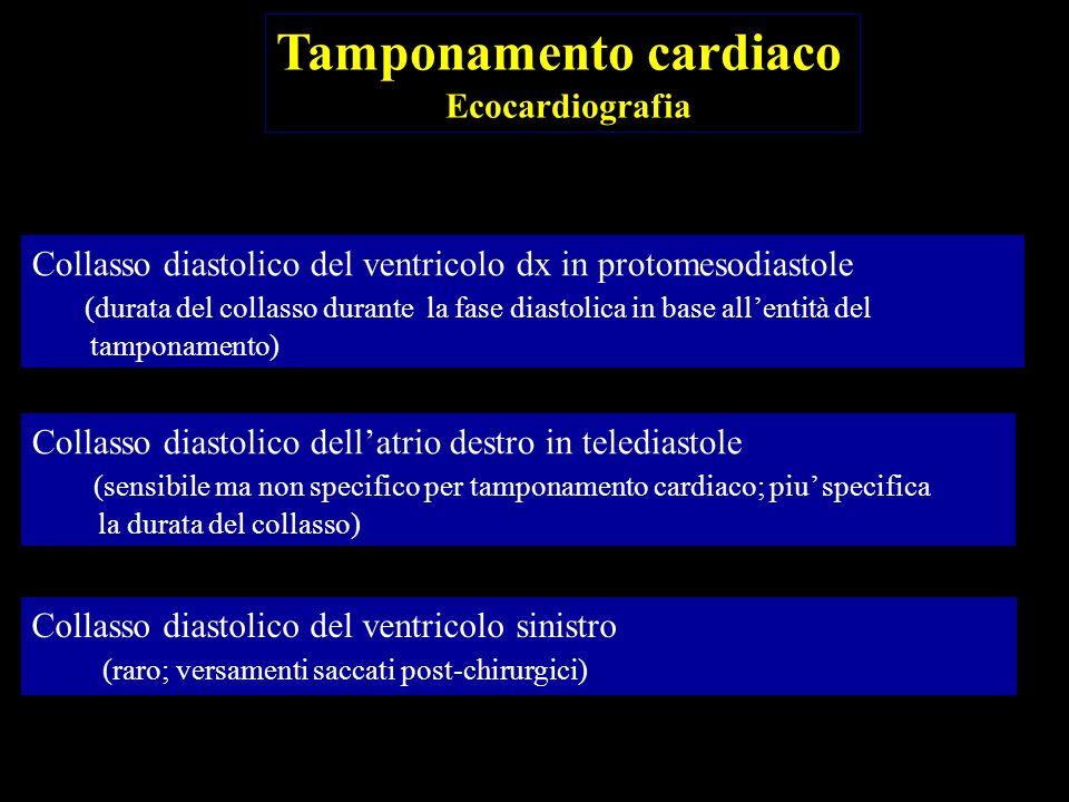 Collasso diastolico del ventricolo dx in protomesodiastole