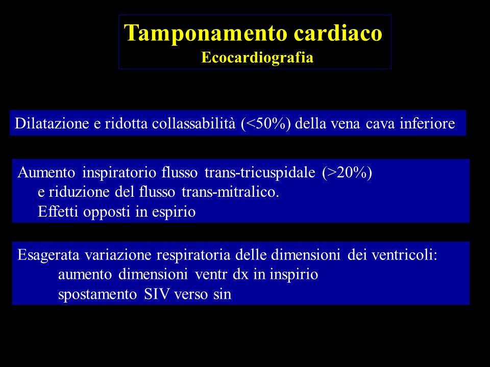 Esagerata interdipendenza ventricolare durante le fasi respiratorie