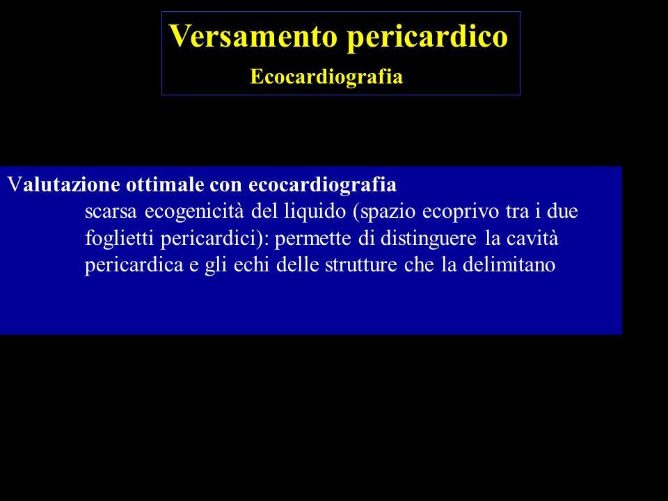 Localizzazione del versamento nei punti di maggiore distensibilità pericardica: prima posteriormente, poi lateralmente, poi anteriormente.