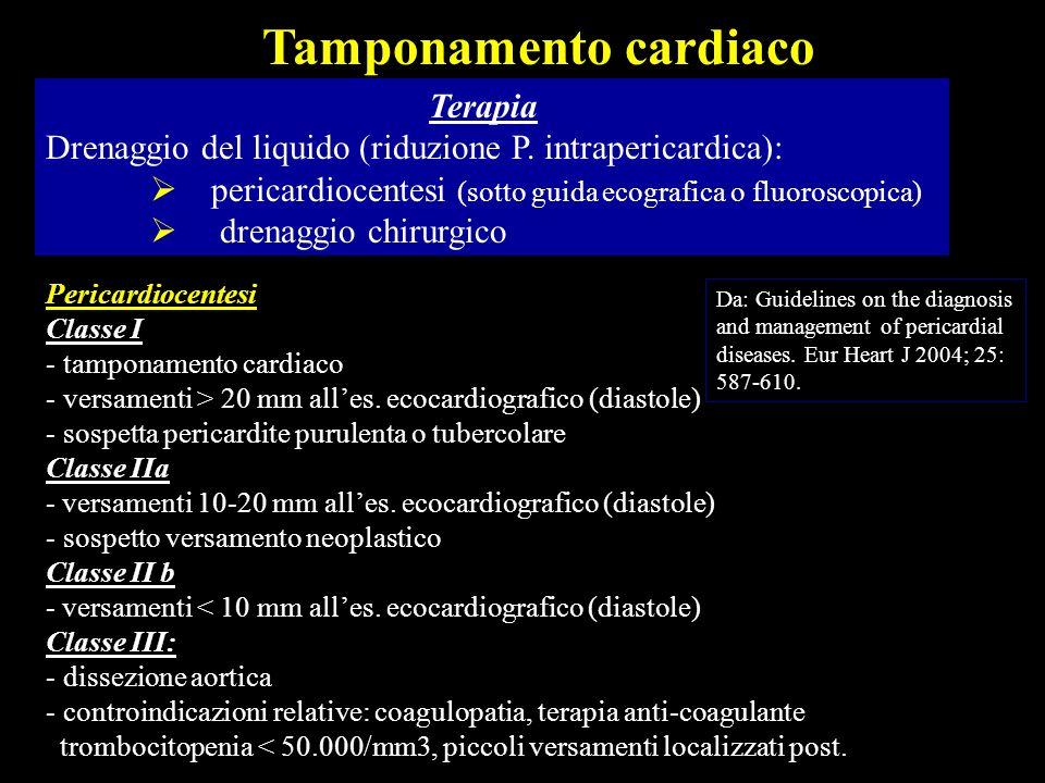 Terapia Drenaggio del liquido (riduzione P. intrapericardica): pericardiocentesi (sotto guida ecografica o fluoroscopica) drenaggio chirurgico Tampona