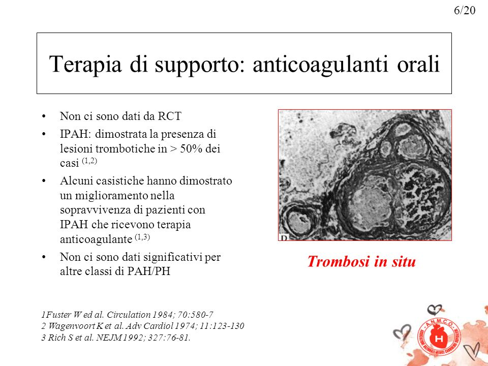 Terapia di supporto: anticoagulanti orali Non ci sono dati da RCT IPAH: dimostrata la presenza di lesioni trombotiche in > 50% dei casi (1,2) Alcuni c