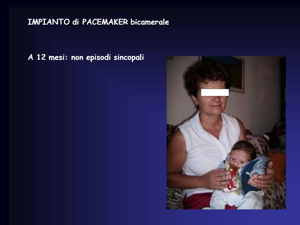 IMPIANTO di PACEMAKER bicamerale A 12 mesi: non episodi sincopali