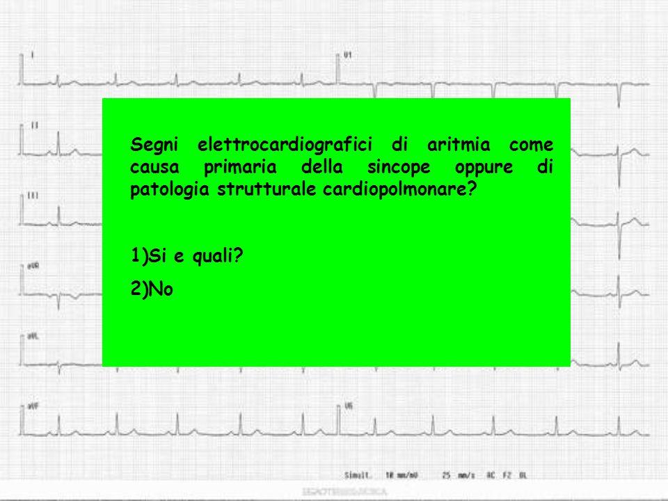 Segni elettrocardiografici di aritmia come causa primaria della sincope oppure di patologia strutturale cardiopolmonare? 1)Si e quali? 2)No