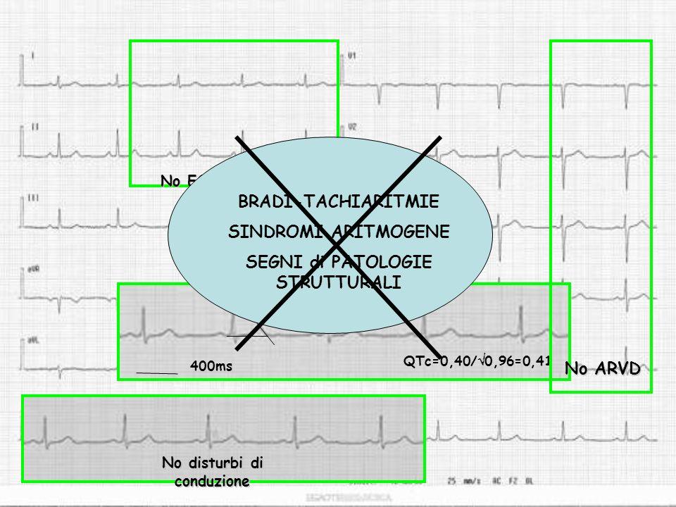 400ms QTc=0,40/ 0,96=0,41 No ARVD No ECG tipo Brugada No disturbi di conduzione BRADI-TACHIARITMIE SINDROMI ARITMOGENE SEGNI di PATOLOGIE STRUTTURALI
