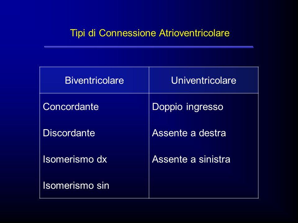 Tipi di Connessione Atrioventricolare BiventricolareUniventricolare ConcordanteDoppio ingresso DiscordanteAssente a destra Isomerismo dxAssente a sini