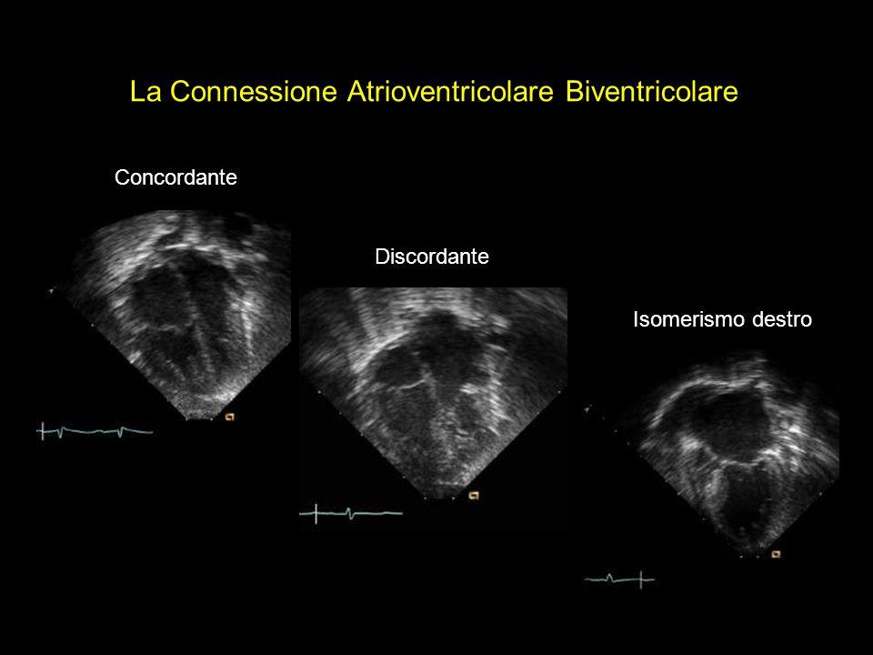 La Connessione Atrioventricolare Biventricolare Isomerismo destro Discordante Concordante