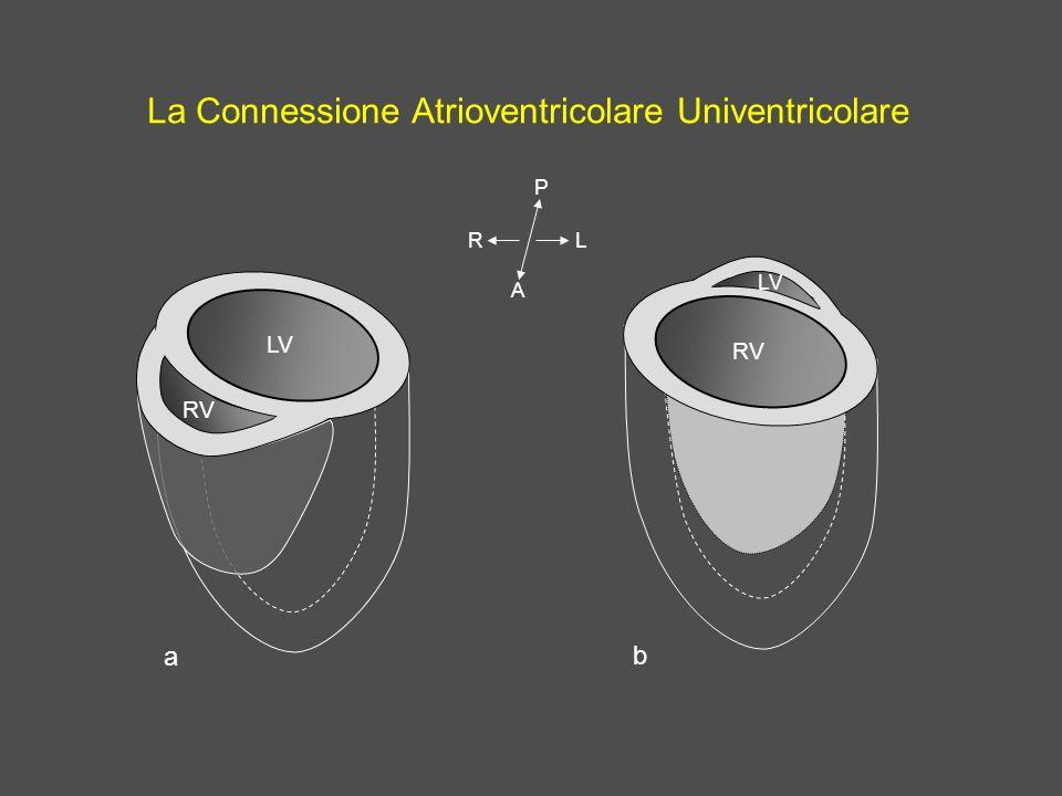 La Connessione Atrioventricolare Univentricolare RV LV A LR P RV LV a b