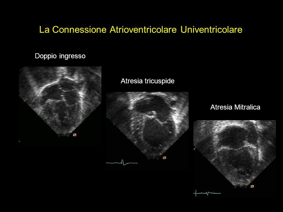 La Connessione Atrioventricolare Univentricolare Doppio ingresso Atresia tricuspide Atresia Mitralica
