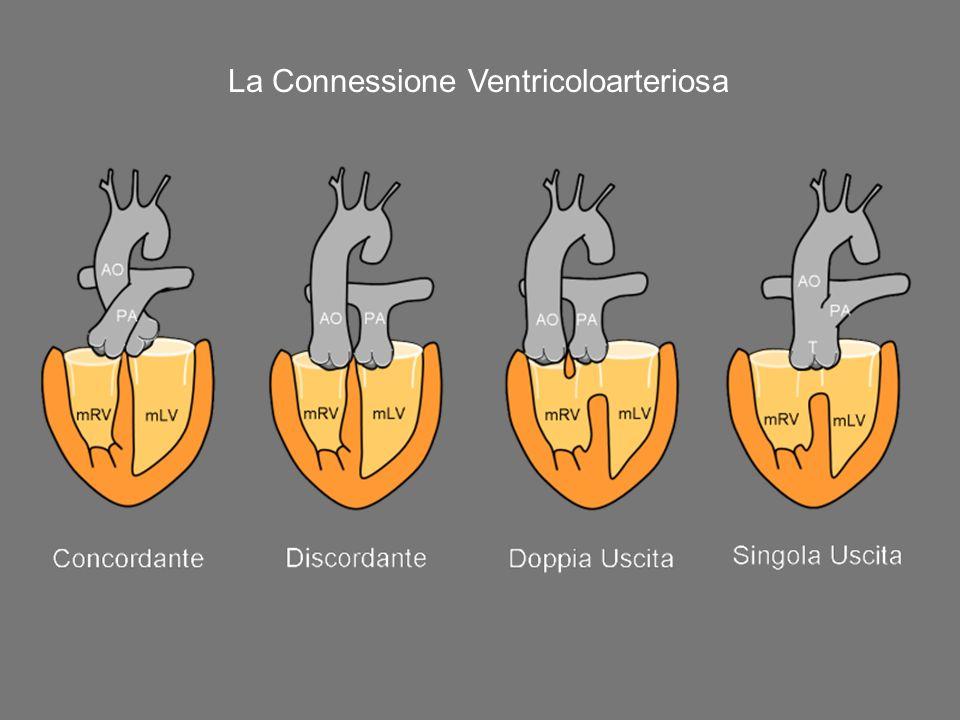 La Connessione Ventricoloarteriosa
