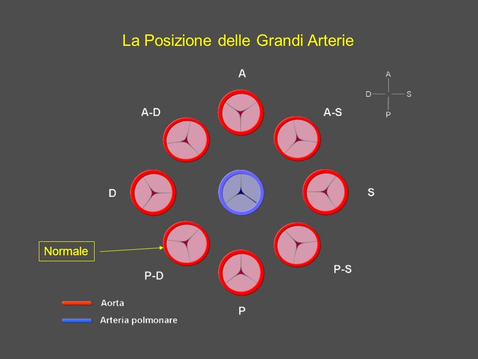 La Posizione delle Grandi Arterie Normale