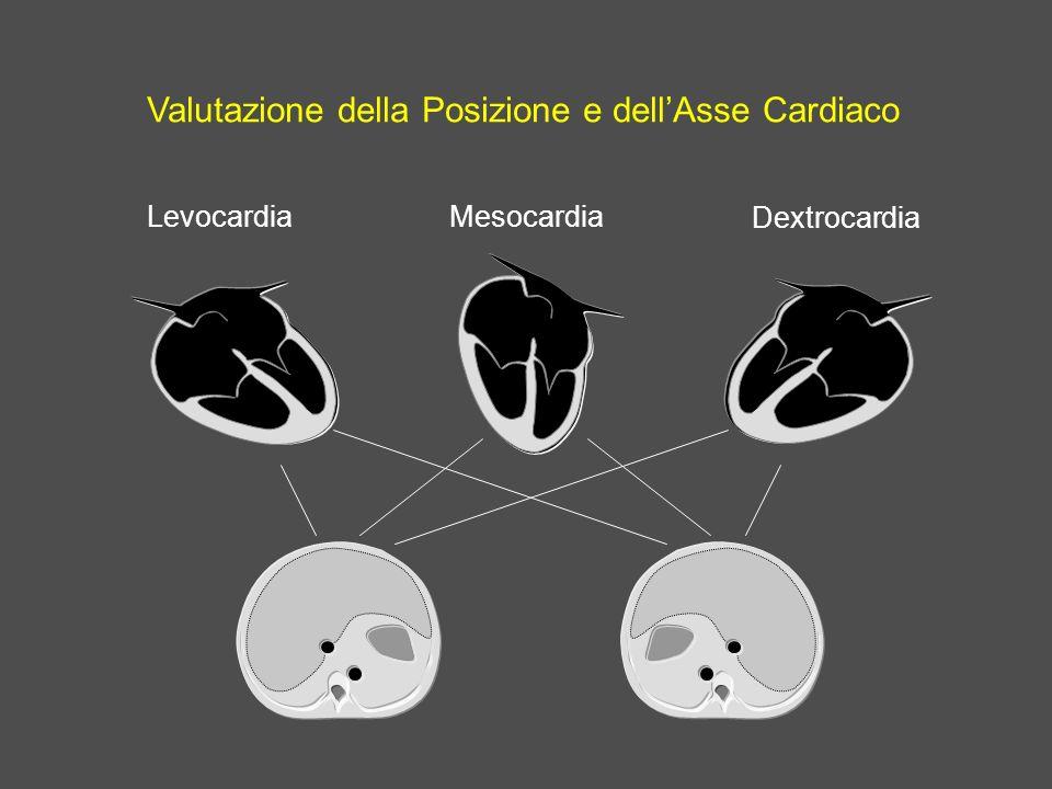 Valutazione della Posizione e dellAsse Cardiaco Levocardia Dextrocardia Mesocardia