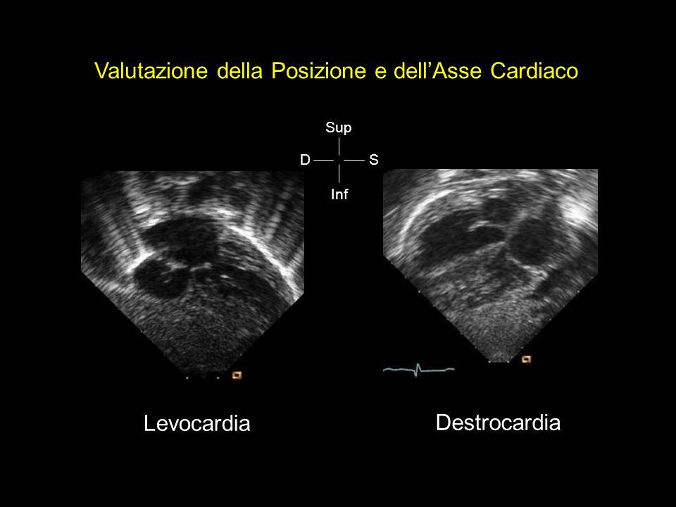 Valutazione della Posizione e dellAsse Cardiaco Sup Inf SD Levocardia Destrocardia